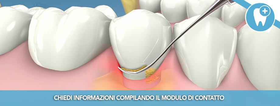 Parodontite: cos'e, a cosa serve ed e' utile il curettaggio?