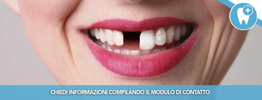 I denti sono davvero persi con la parodontite?