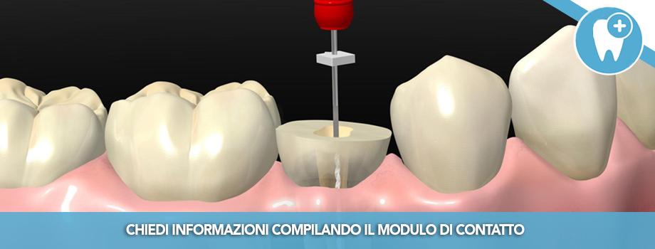 I denti devitalizzati vanno sempre ricoperti con corone?