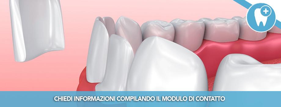 Faccette dentali: cosa sono e quando sono indicate