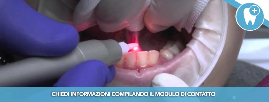 Le Frenulectomie: perché vanno fatte e tecniche Laser