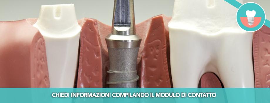 Implantologia Riabilitazione Dentale