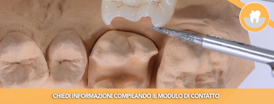 Intarsio Dentale per il ripristino estetico e funzionale