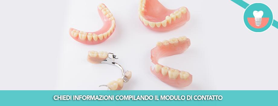 Implantoprotesi per il recupero degli elementi dentali