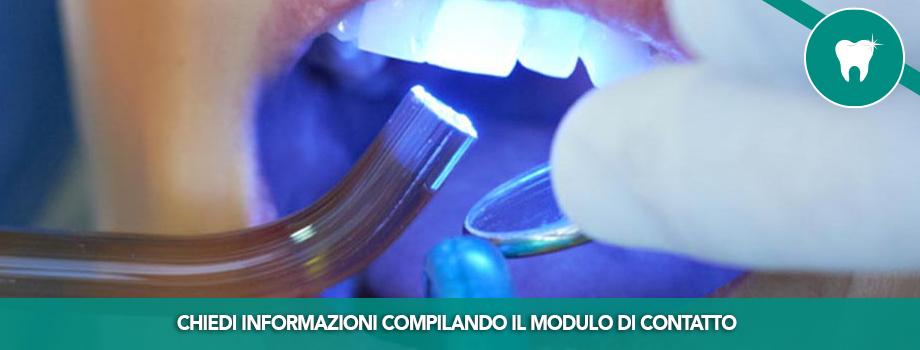 Sbiancamento dentale con il Laser